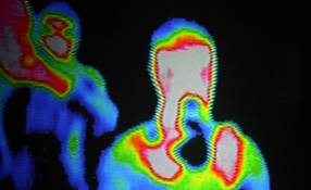 The Case For Thermal Network Cameras In Video Surveillance